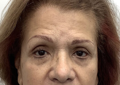 Brow Lift Before & After Patient #1841