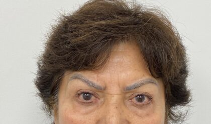 Botox Before & After Patient #1809