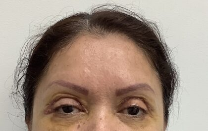 Eye Lift Before & After Patient #1816