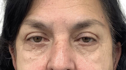 Eye Lift Before & After Patient #1881