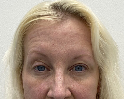 Eye Lift Before & After Patient #1860