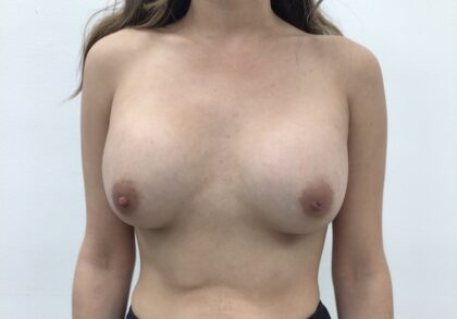 Breast Augmentation Before & After Patient #1937
