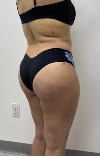 Brazilian Butt Lift Before & After Patient #1928