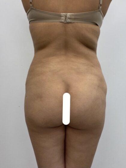 Brazilian Butt Lift Before & After Patient #1925