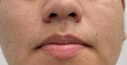 Mole Removal Before & After Patient #2003