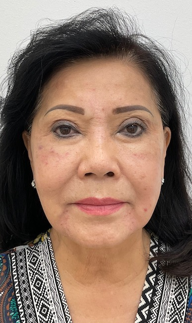 Facial Fillers Before & After Patient #2032