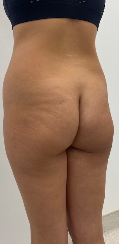 Fat Transfer Before & After Patient #2077