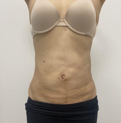 Liposculpture Before & After Patient #2021