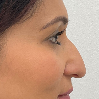 Rhinoplasty Before & After Patient #2139